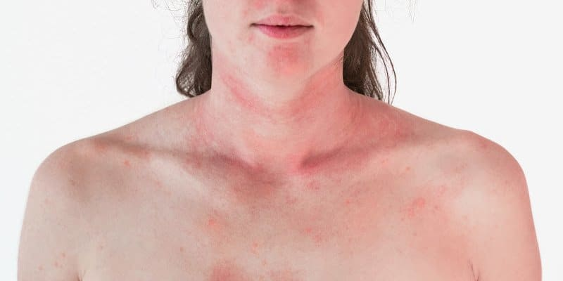 red splotchy skin from alcohol